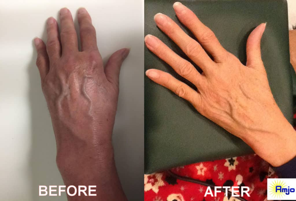 CRPS Hand Before and After Curatron PEMF